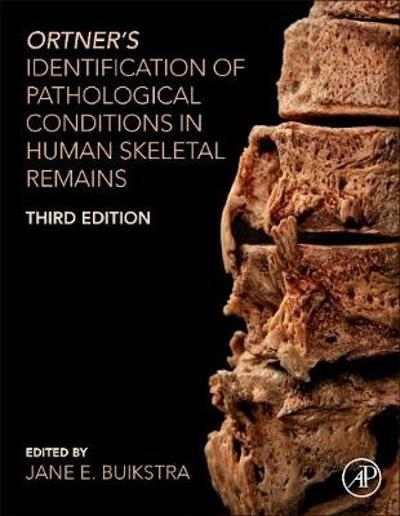 Ortner's Identification of Pathological Conditions in Human Skeletal Remains - Jane E. Buikstra