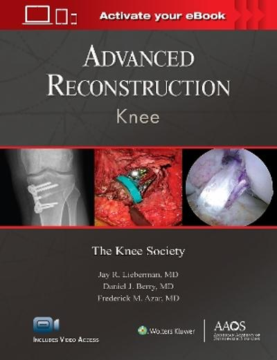 Advanced Reconstruction: Knee: Print + Ebook with Multimedia - Jay R. Lieberman