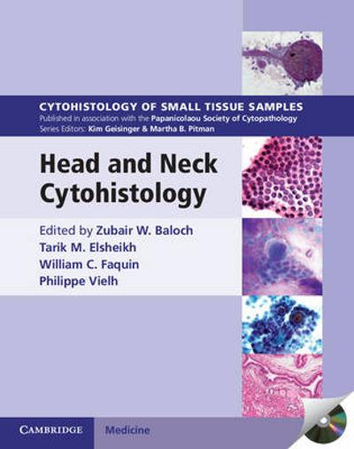 Head and Neck Cytohistology with DVD-ROM - Zubair W. Baloch